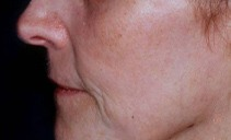 After Laser Skin Resurfacing Treatment