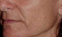 Left cheek before treatment