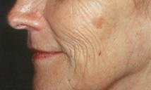 Before Laser Skin Resurfacing Treatment