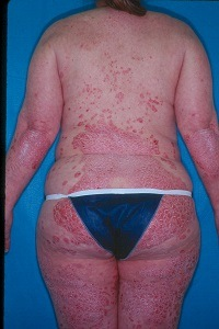 Psoriasis before Remicade treatment