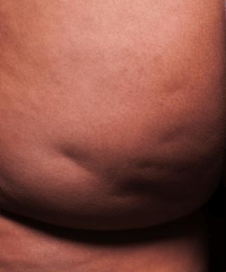 Before Cellfina procedure