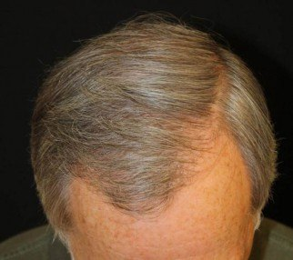 After two hair transplant sessions