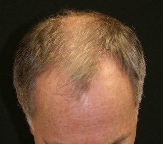 Before hair transplant surgery