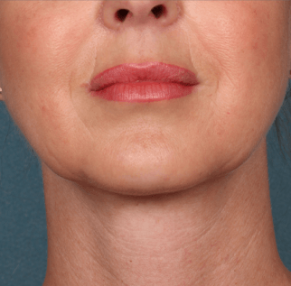 After Kybella™ procedure