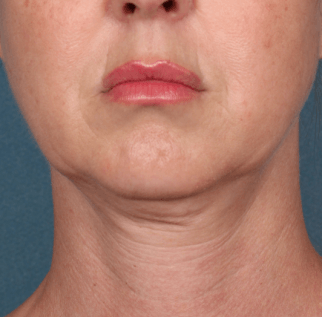 Before Kybella™ procedure