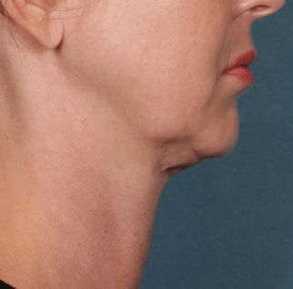 Before Kybella™