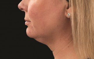 Before CoolSculpting treament for neck fullness