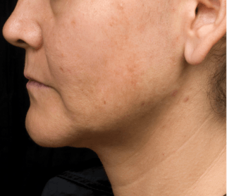3 months after Thermage treatment for skin tightening