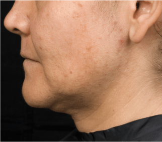 Ill defined jaw and neck fullness before Thermage treatment