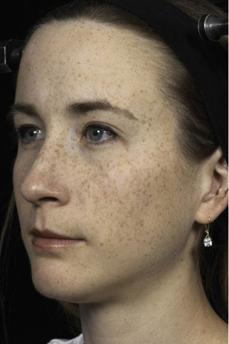 Before treatment of patient with sun-induced freckles