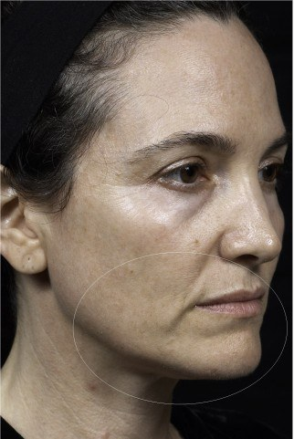 Two months after Thermage treatment to tighten skin
