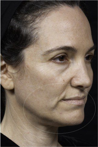 Sagging skin around the mouth before Thermage treatment