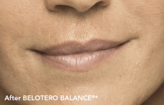 Results after Belotero filler treatment