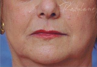 After 1 ml of Restylane filler treatment