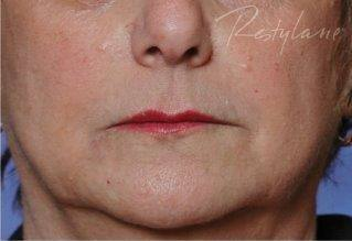 After 2 ml of Restylane filler treatment