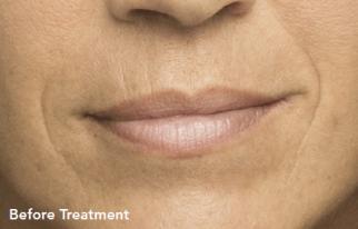 Nasolabial folds before Belotero filler treatment