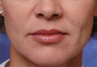 Nasolabial folds before Restylane injectable filler treatment
