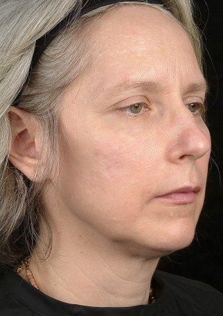 6 months after Thermage treatment for skin tightening