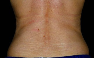 28 weeks after Coolsculpting treatment on bra-line