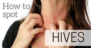 How to spot hives