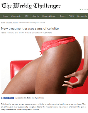 New Treatment Erases Signs of Cellulite