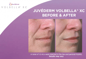 Before and after photos of Juvederm Volbella treatment