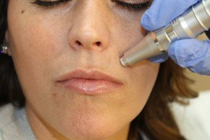 Woman treated with microneedling