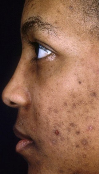 Before acne scars treatment