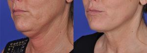 Before and after photos of woman's jawline treated with Thermi