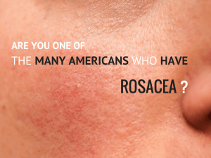 Could you have rosacea