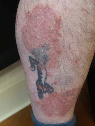 Psoriasis case 2 skincare physicians for Tattoos and eczema
