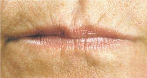 Photo of lip lines