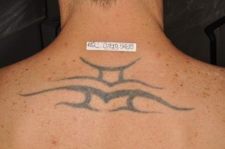 Tattoo before Enlighten laser treatment