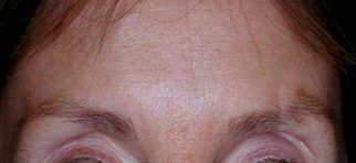 Forehead lines after Botox treatment