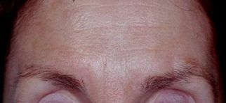 Results Of Botox Treatment On Forehead Skincare Physicians