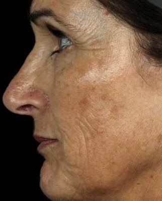 Before laser treatment of patient with brown spots