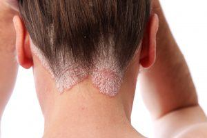 Photo of psoriasis on the hairline and on the scalp