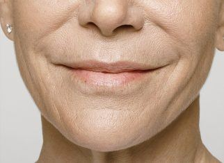 After Restylane filler on lip and smile lines