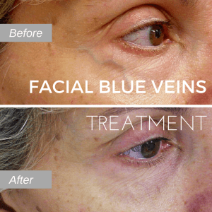 Before and after photo of facial blue vein