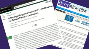 Publication regarding possible treatments for EDP skin condition