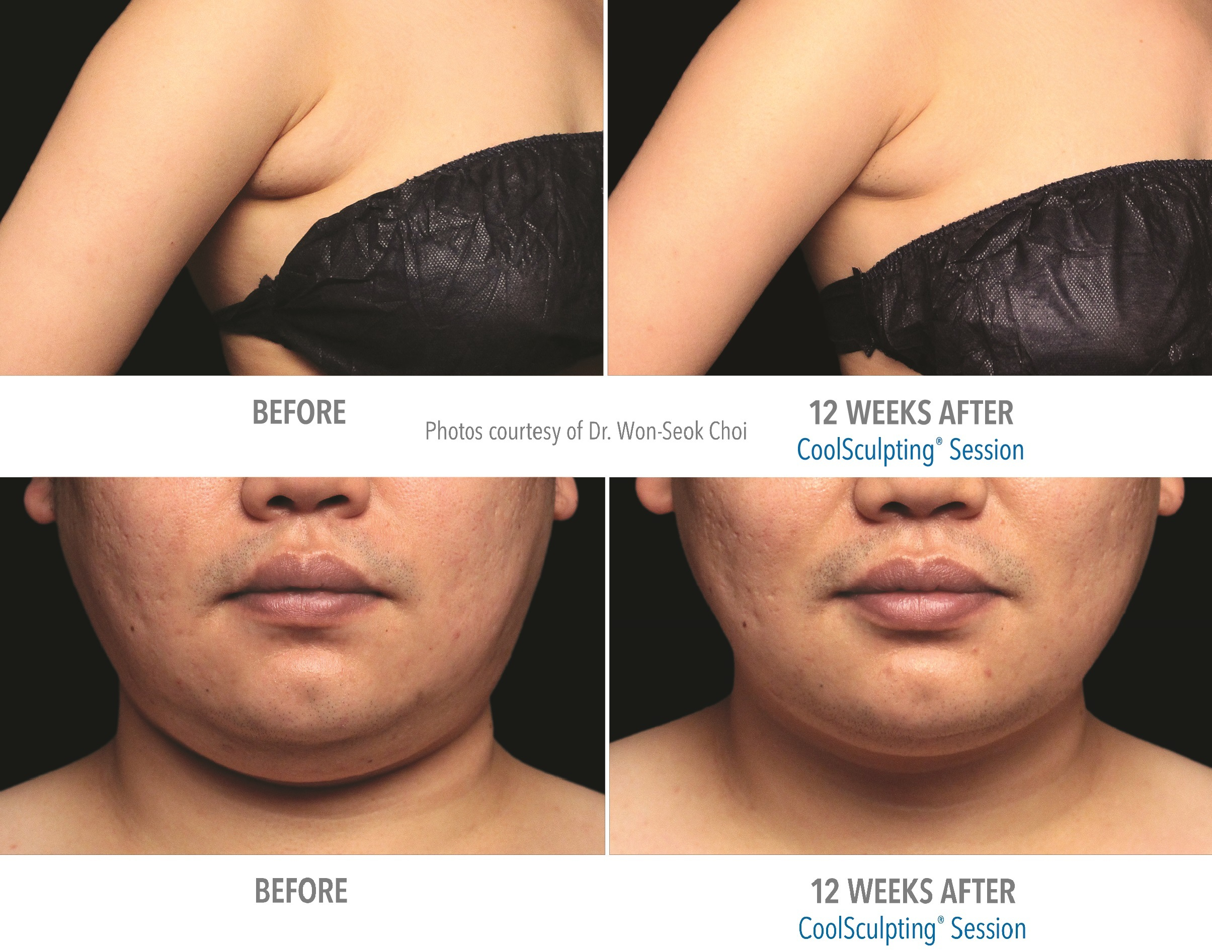 Before & After photos of underarm bulge and double chin treated with CoolScupting