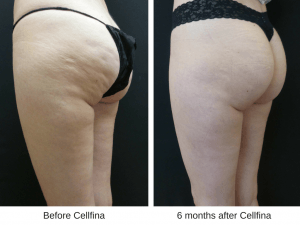 Before and after photos of Cellfina treatment for cellulite