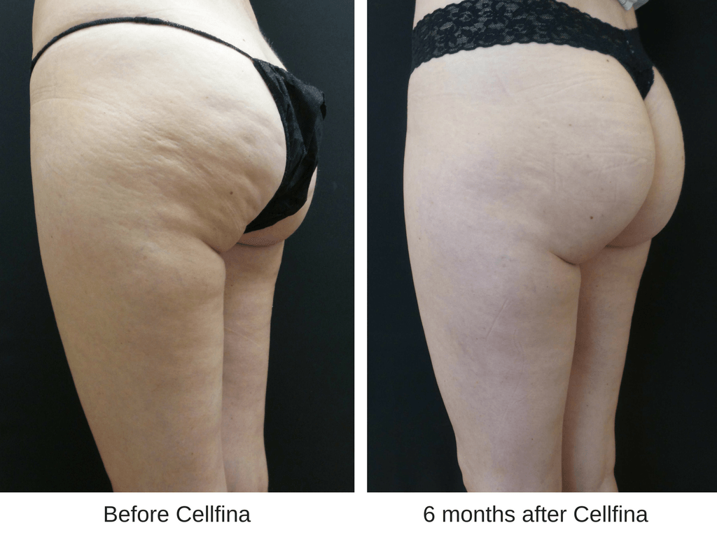 Cellfina For Cellulite Staggering Effectiveness That Lasts Skincare Physicians