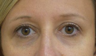 After laser treatment on  under-eye blue vein