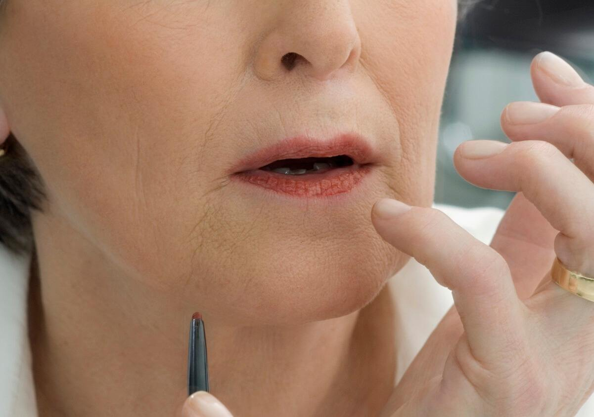Lip Lines Exciting New Treatment Approach Skincare Physicians