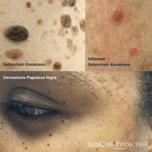 Examples of common skin growths called seborrheic keratoses