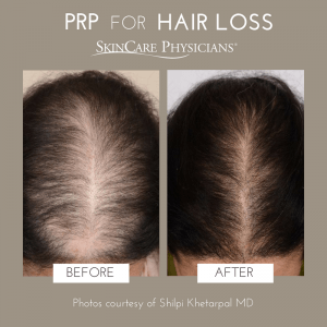 PRP – An exciting new approach to the treatment of hair loss