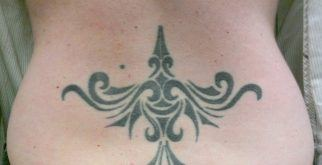 Black tattoo before laser treatment