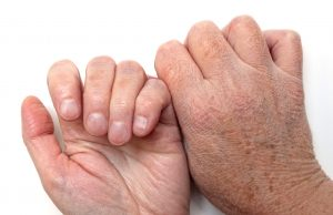 Photo of dry hands