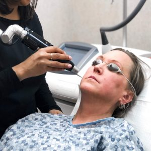 Woman getting a PicoToning laser treatment to improve her facial skin color and texture